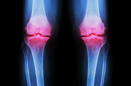 Osteoarthritis-Knee-(-OA-Knee-)-489559064_1265x834